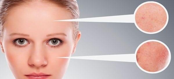 az arc duzzanata magas vérnyomás miatt a magas vérnyomás betegségekre utal